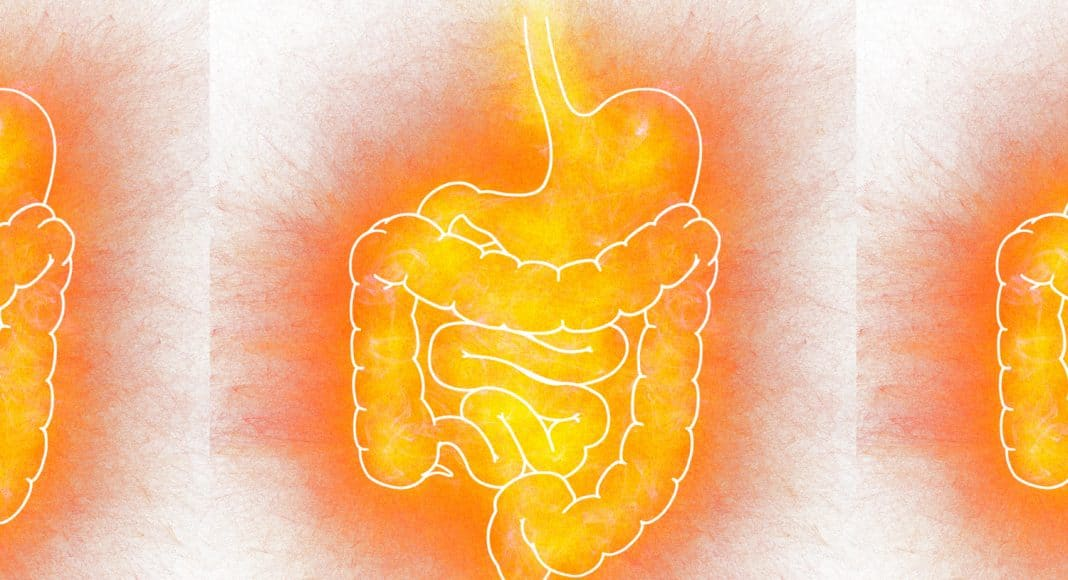 Cannabis And Gut Health Does It Boost Your Gut Bacteria?